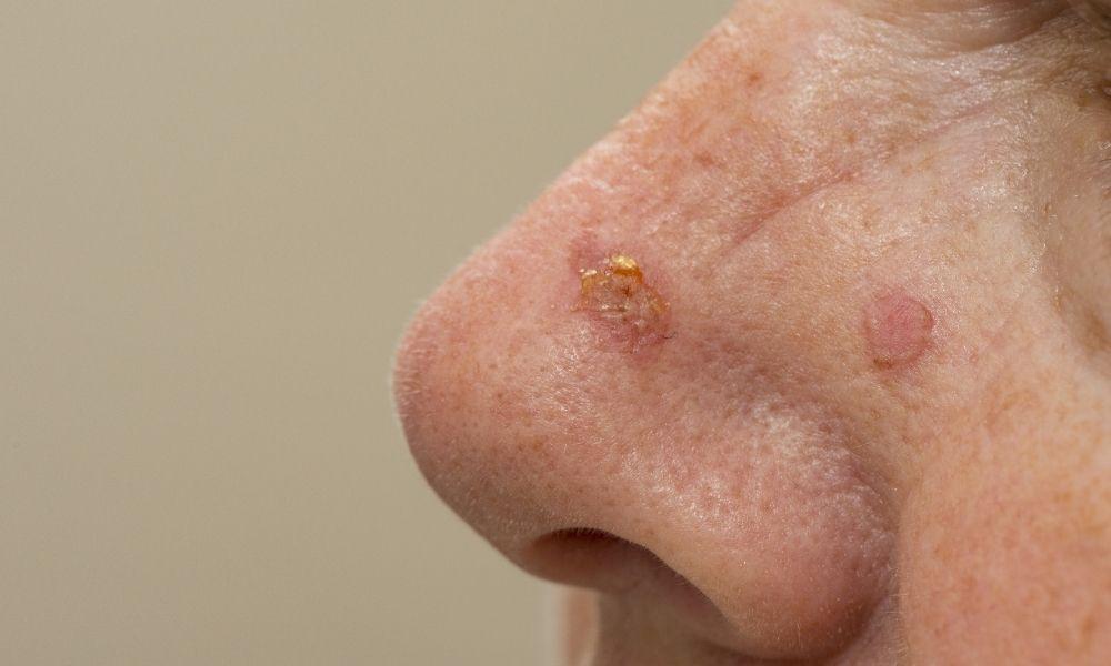 Actinic keratosis on nose