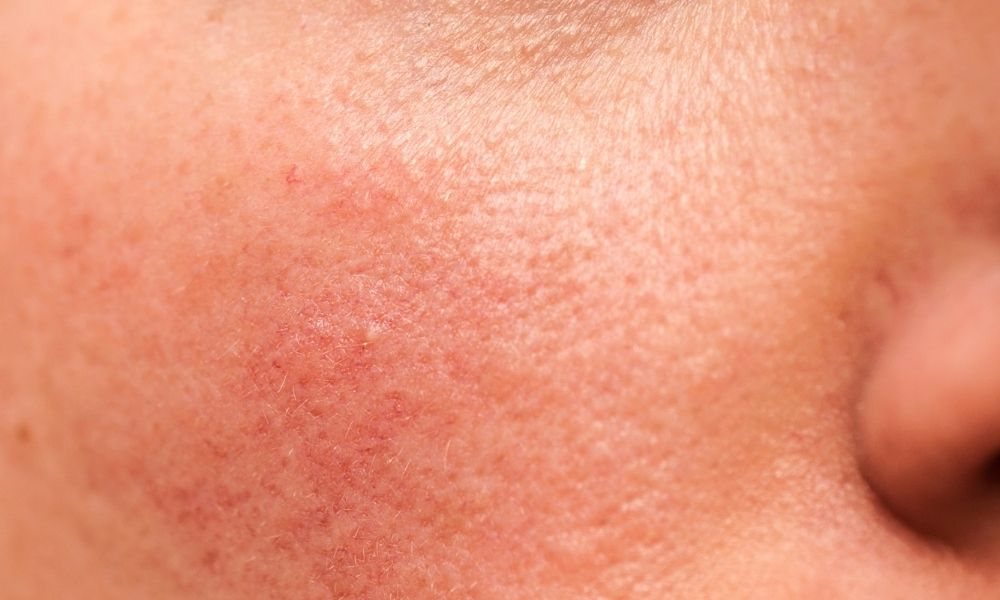 Rosacea on the cheek of a caucasian male or female