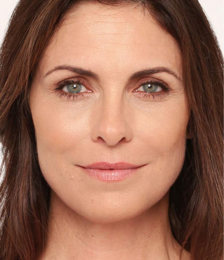 After-Radiesse-Facial-Dermal-Filler.png